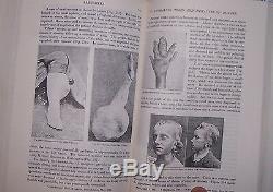 Freak Spécimen Bizarre Maladie Obstétrique Médicale Anatomie Naissance Autopsie Bizarreries
